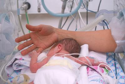 Недоношенный ребенок фото в больнице